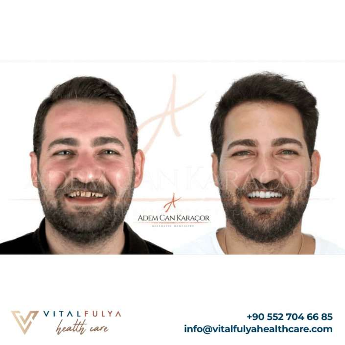 Dental Aesthetics - Vital Fulya Health Care