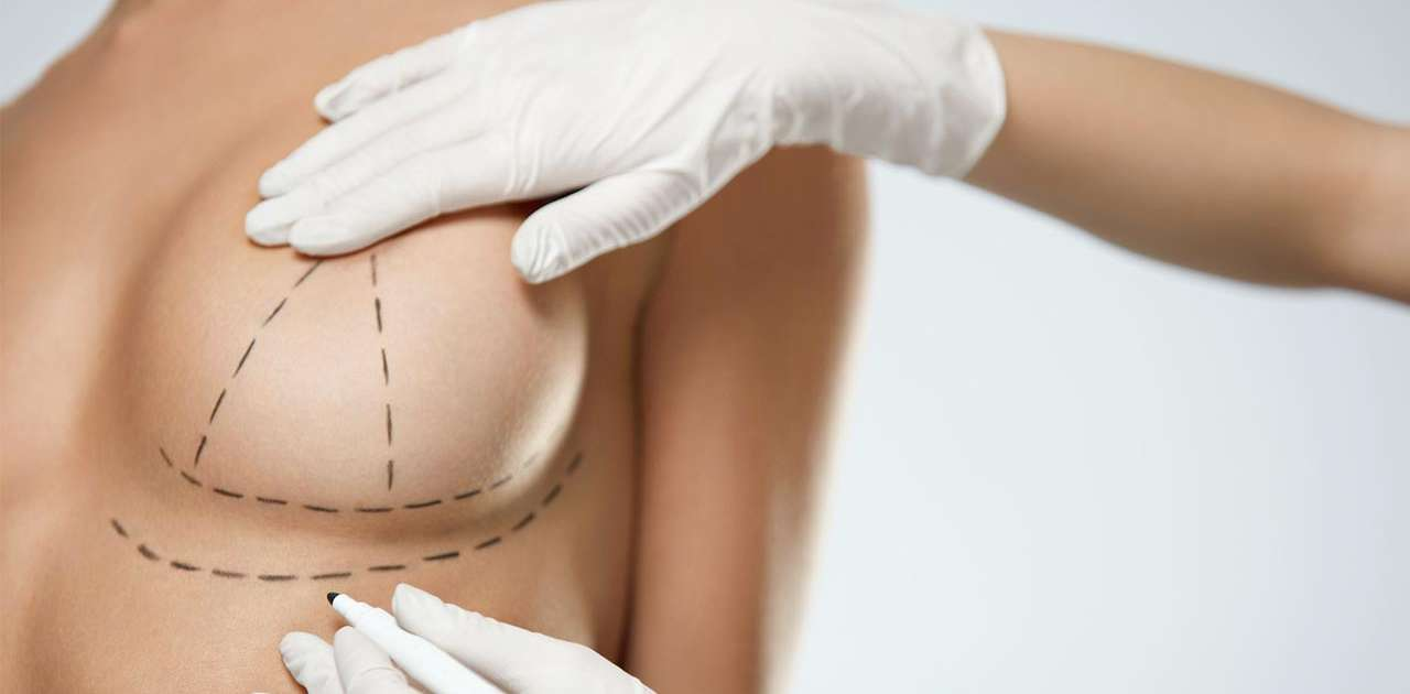 Breast Augmentation Surgery in Istanbul