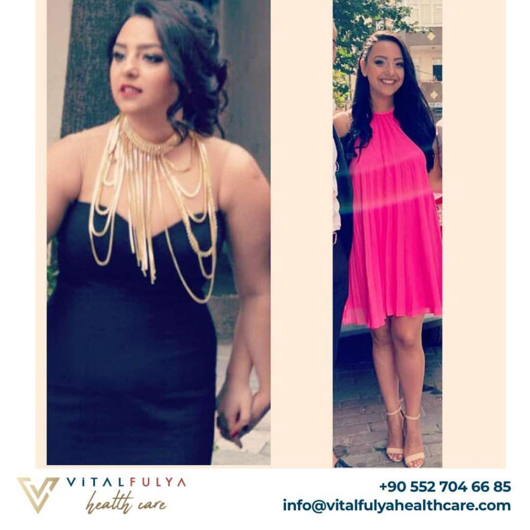 Gastric Sleeve Before & After in Istanbul